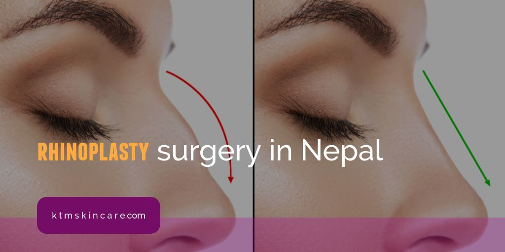 Rhinoplasty Treatment In Nepal