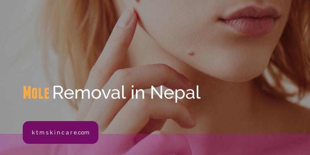 Mole Removal In Neppal